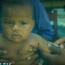 Na polynéském ostrově Samoa zemřely dvě děti krátce po očkování vakcínou MMR